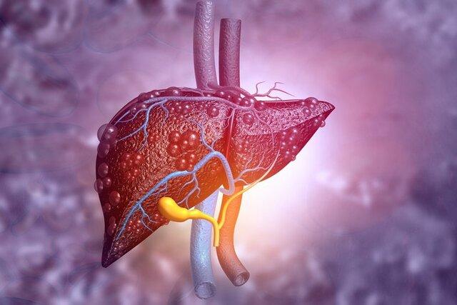 Đối với tình trạng bệnh viêm gan, xơ gan cổ trướng thì nên dùng cây cát lời kết hợp với những loại dược liệu khác nhau