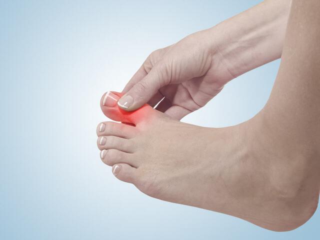 Nếu không được phát hiện và điều trị đúng cách, bệnh gút theo thời gian có thể gây phá hủy khớp vĩnh viễn, bào mòn xương và tổn thương thận